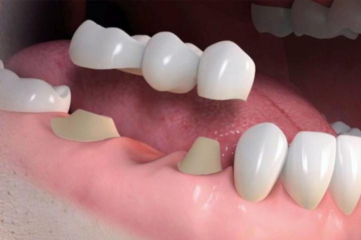 ponte sobre dentes