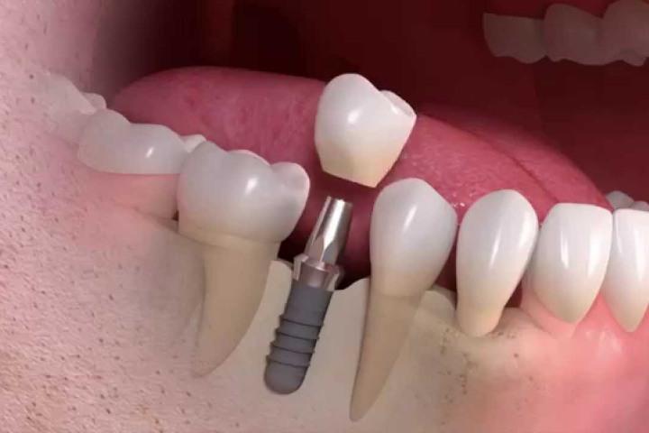 implante dentario unitario