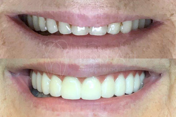 troca de dentadura por prótese fixa em implantes fabricada em zircônia