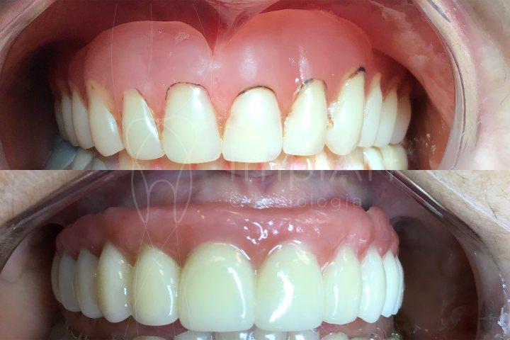 reabilitação com implantes dentários de arcada completa