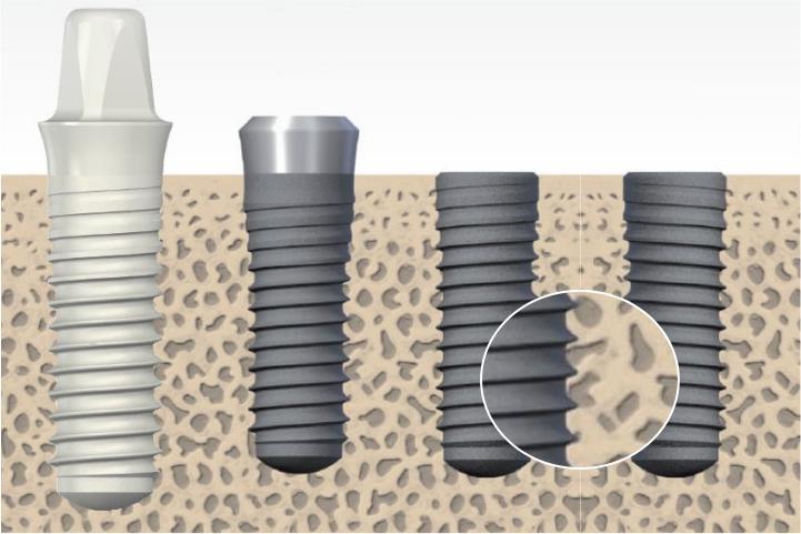 implante dentario ossointegrado é fixação do implante no osso