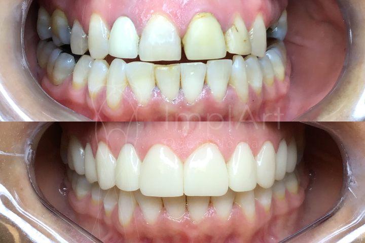lentes de contato dentais facetas clareamento dental restaurações implantes dentários