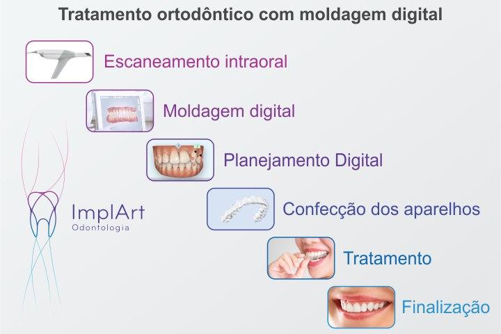 fluxo tratamento digital invisalign alinhador transparente