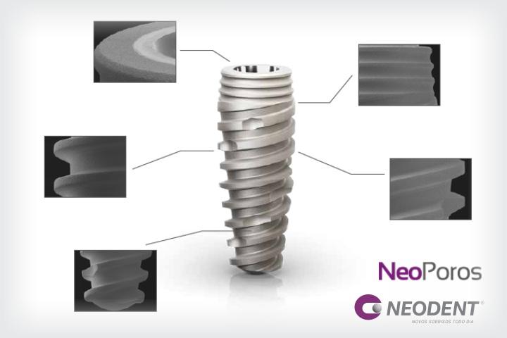 implante neoporos neodent na implart
