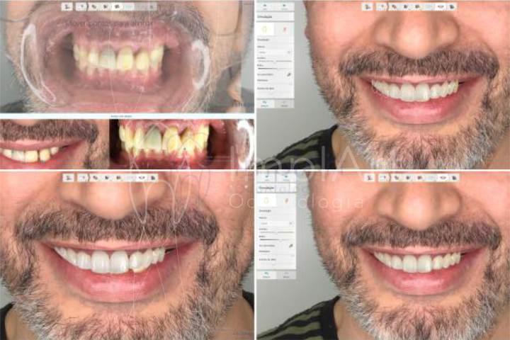 planejamento do sorriso digital tratamento computadorizado dentista
