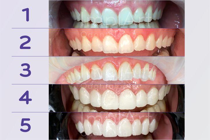 tratamento estetica dental lentes de contato dentais e gengivectomia