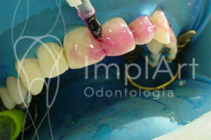 clareamento a laser dentes brancos