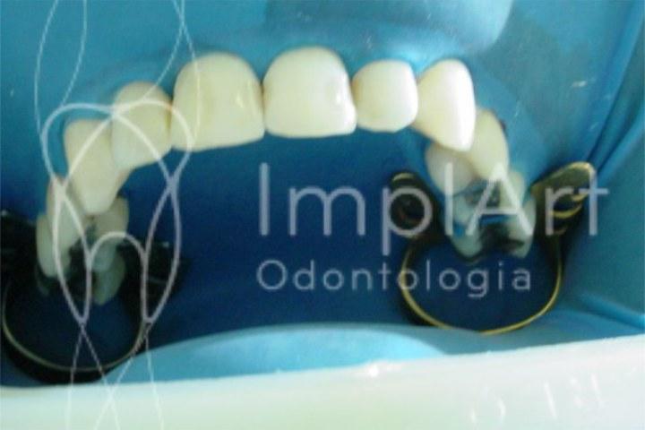 dentes brancos depois do clareamento a laser