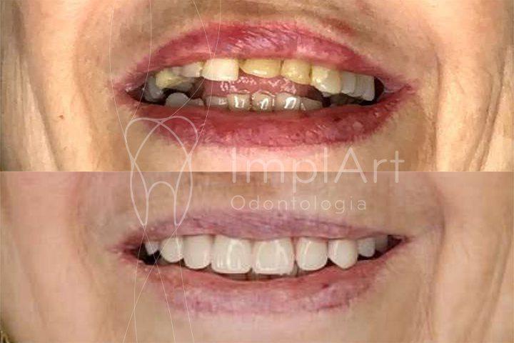 reabilitação oral com prótese fixa em implantes